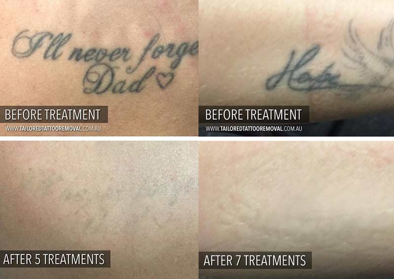 Tailored-Tattoo-Removal